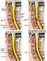 Progression of Condition of the Cervical Spine