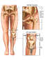 Female Lower Extremities with Post-accident Hip Fractures and Long-term Traction Repair