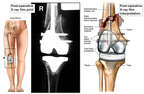 Anterior Lower Extrmeities with Post-operative Condition and Right Total Knee Replacement