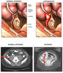 Normal Appendix v. Appendicitis