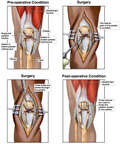 Ruptured Patellar Tendon with Surgical Repair
