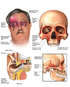 Traumatic Head Injuries