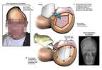 Surgical Reconstruction of Hemicraniectomy Defect