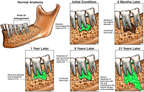 Progression of Mandibular Deterioration