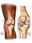 Right Knee Injuries