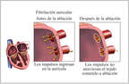 Atrial Fibrillation Corrected with Ablation Surgery