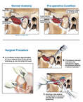 TMJ Derangement with Surgical Repairs