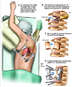 Proposed Thoracotomy with Antero-Lateral Thoracic Spinal Fusion