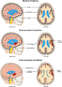 Post-overdose Condition of the Brain