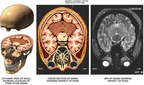Pontine Infarct in the Brain