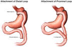 Roux-en-Y Gastric Bypass
