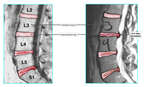 Before and After Comparison of Lumbar Condition
