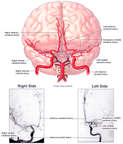 Cerebral Arteriograms