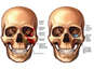 Left Sided Facial Fractures with Surgical Repairs