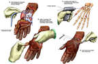 Severe Hand Injury with Surgical Fixation