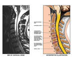 Whiplash Injury - C4-5, C5-6 and C6-7 Cervical Intervertebral Disc Herniations