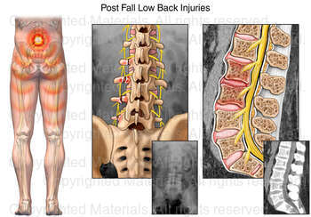 Post Fall Low Back Injuries