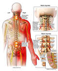 Cervical and Lumbar Injuries with Chronic Pain