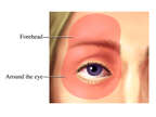 Glaucoma: Areas of Pain