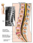 Lumbar Disc Herniation Injury with Compression of Cauda Equina at L5-S1