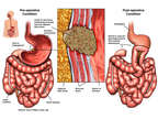 Gastric Carcinoma with Surgical Resection
