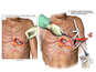 Thoracotomy Procedure with Extraction of Pole