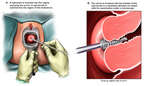 Endocervical Curettage
