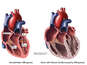 Dilated Cardiomyopathy