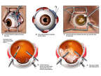 Scleral Buckle and Lensectomy