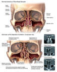 Anterior Cut-Away Views of the Skull with Pre-operative Condition of the Sinuses