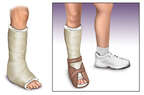 Plantar Fasciitis: Treatment
