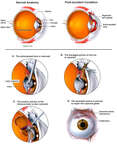 Left Eye Injuries with Surgical Repairs