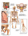 Traumatic Injury of the Face, Chest, Hip, Spine and Wrist