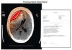Post-accident Brain Injury with Page from Medical Records