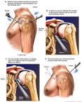 Arthroscopic Repair of the Glenoid Labrum
