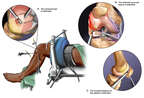 Arthroscopic Knee Repairs