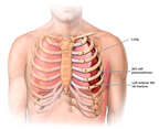 Male Torso with Post-accident Chest Injuries and Left Lung Collapse