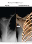 Colorized X-Ray Film Print with Post-accident Left 4th Posterior Rib Fracture