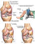 Left-Knee Injuries with Arthroscopic Repairs