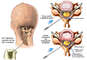 Cervical Epidural Steroid Injection with Subsequent Syrinx Formation
