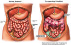 Colonic Ischemia with Toxic Megacolon