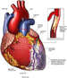 Coronary Artery Stenosis with Subsequent Myocardial Infarction