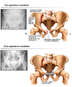 Multiple Pelvis Fractures with Surgical Fixation