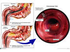 Multiple Steps of Colonoscopy