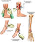 Internal Fixation of Right Ankle Pilon Fracture