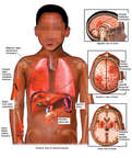 Black Child Torso with Brain, Thoracic and Abdominal Injuries with a Fractures to the Upper and Forearm