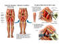 Adductor and Flexor Spasticity and Contracture with Surgical Release