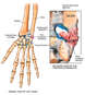Wrist Ligament Injury