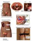Hysterectomy Surgery - Post-operative Obstruction of the Ureter