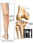 Compression Fracture of Tibial Plateau